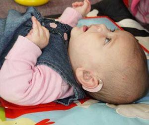 A baby with a hearing aid at The Ezliabeth Foundation for preschool deaf children